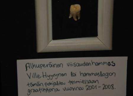 Antti Hyyrysen veli Ville kehitti yhtyeen hammaslogon tästä viisaudenhampaasta. Onko se Villen vai Antin, sitä Antti ei muista.